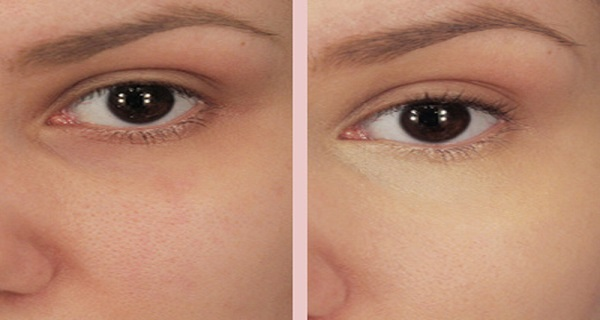 Put-this-mixture-Under-Your-Eyes-and-the-Result-is-Amazing