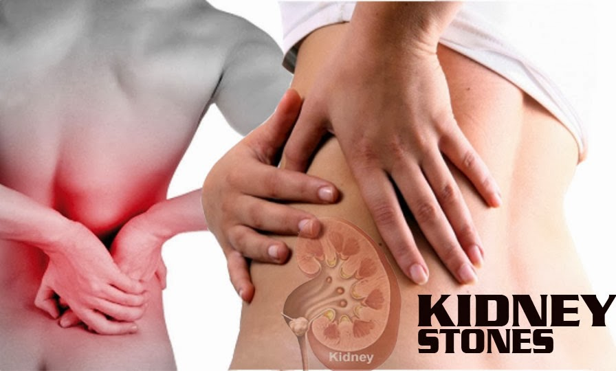 juices-for-kidney-stones