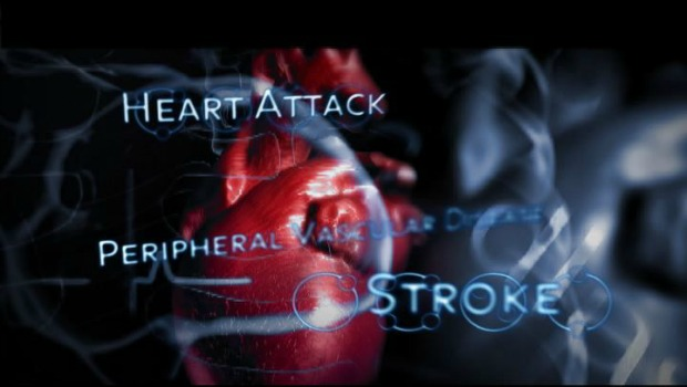 heart disease and stroke Many women go to great lengths not to burden those around them but the signs of stroke demand immediate attention, even if it seems like the worst timing.