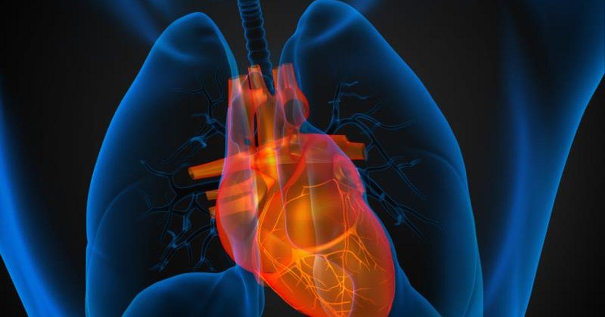 Enlarged-Heart