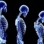 calcium_osteoporosis