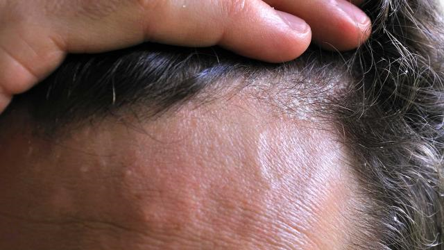 management of scalp psoriasis | 1mhealthtips, Skeleton