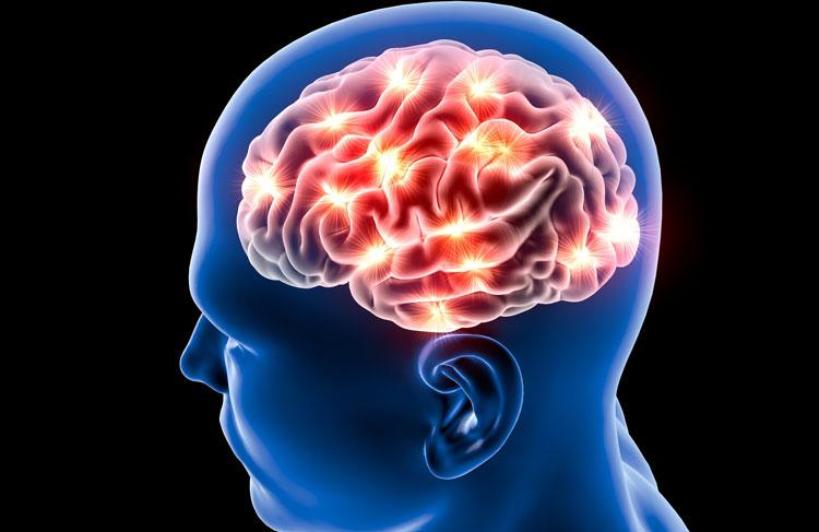 brain_stroke