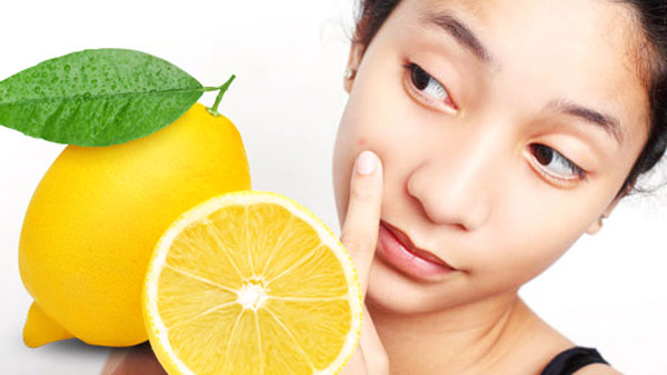 Lemon-for-Pimples