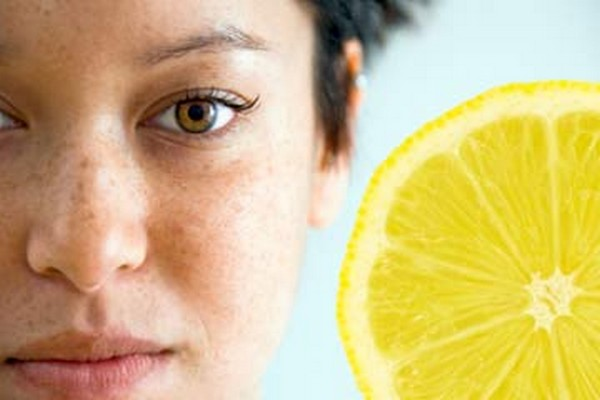 home-remedies-freckles