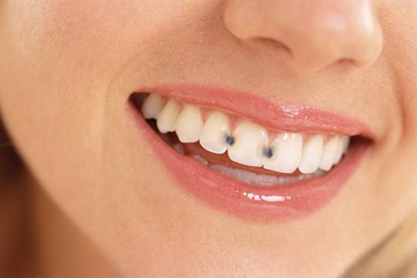 reverse-Cavities