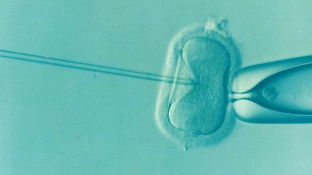 infertility in women