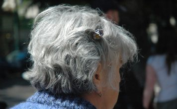 gray hair and heart disease