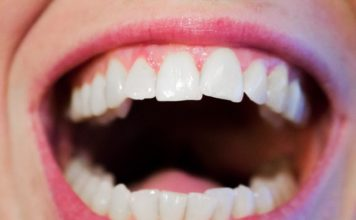 foods to whiten teeth naturally