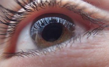 natural remedy for cataract