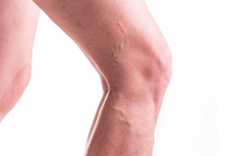 How to Get Rid of Varicose Veins Naturally | 1mhealthtips.com