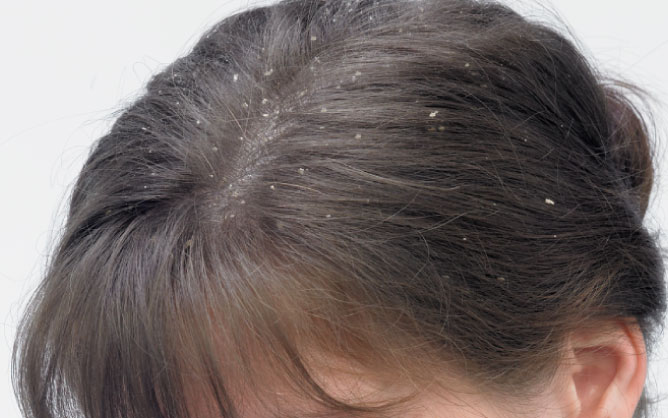 natural remedy for dandruff