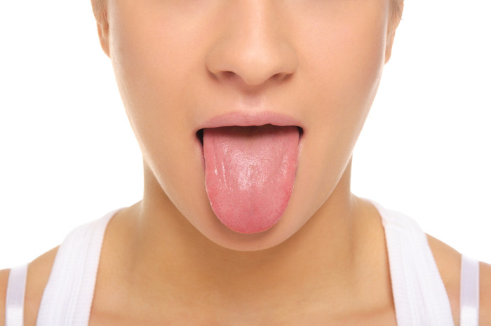white tongue