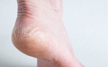 how to prevent cracked heels