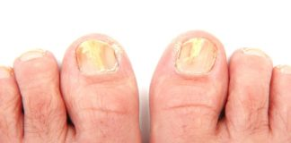 toenail fungus remedy