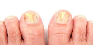 toenail fungus remedy