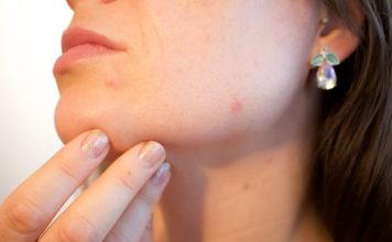yogurt for acne