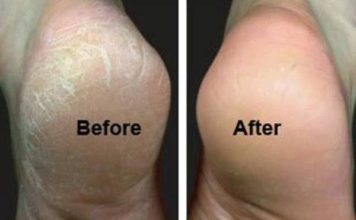 cracked heels remedies