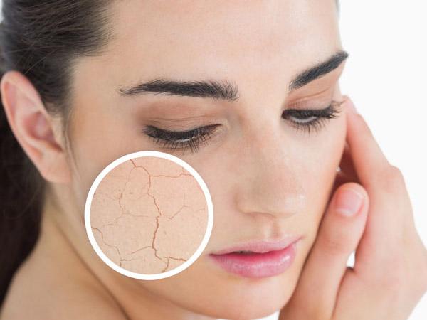 dry skin natural remedies