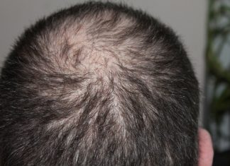 foods-to-eat-for-hair-loss