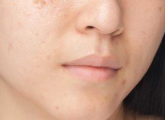 natural remedies for Chicken-pox-scars