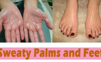 home remedies for sweaty-hands-feet