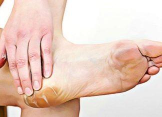 feet-calluses natural remedy
