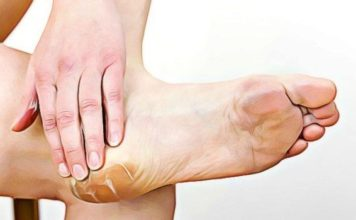 feet-calluses natural remedy